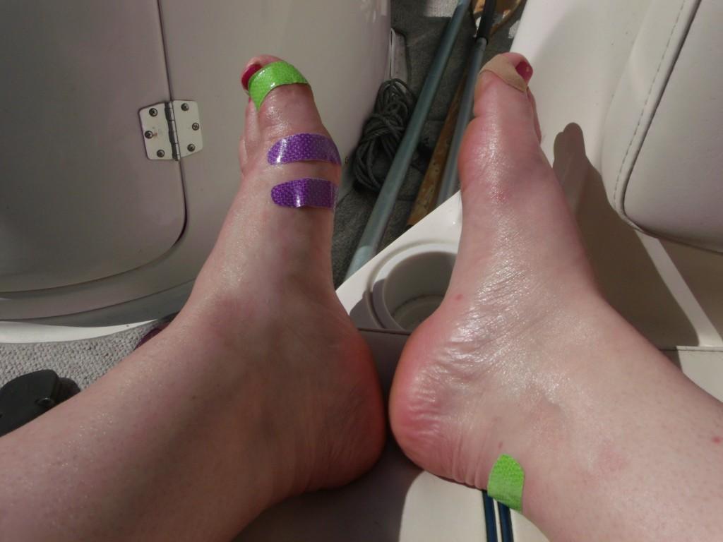 Gashes on my feet